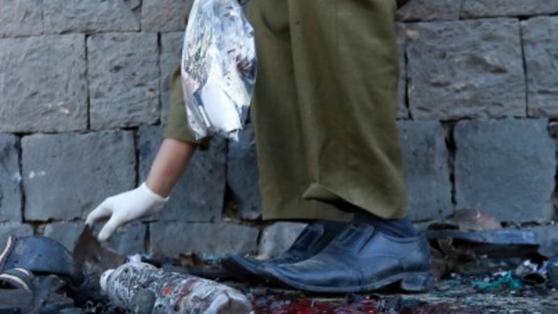 Yemen bomb kills 30, injures 50
