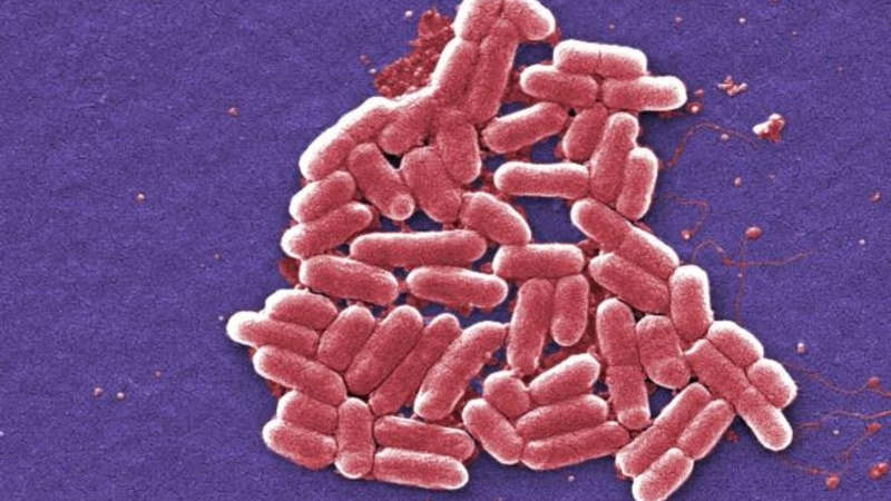 Antibiotics-resistant superbug lands in U.S.