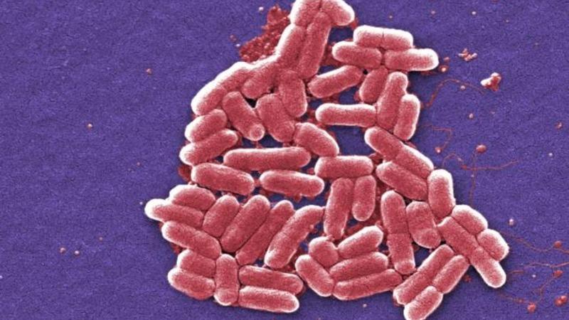 Antibiotics-resistant superbug lands in U.S.