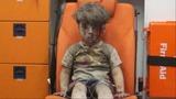 Brother of boy filmed in Aleppo dies