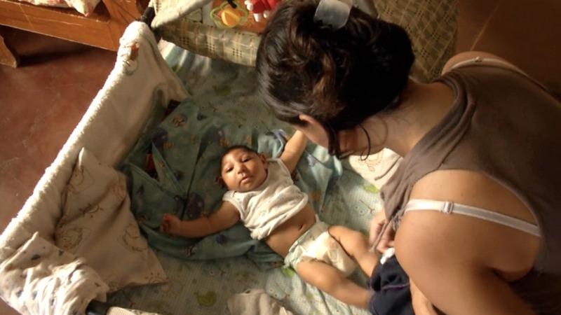 Venezuela's microcephaly babies struggle