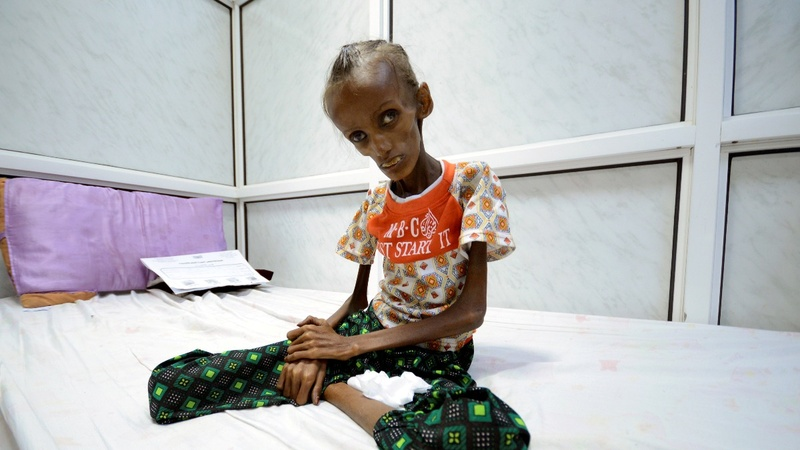 Severe malnutrition in Yemen