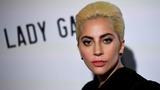 VERBATIM: Kill them with kindness, not fame - Gaga
