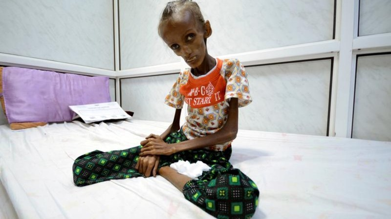 Emaciated Yemeni teen on road to recovery