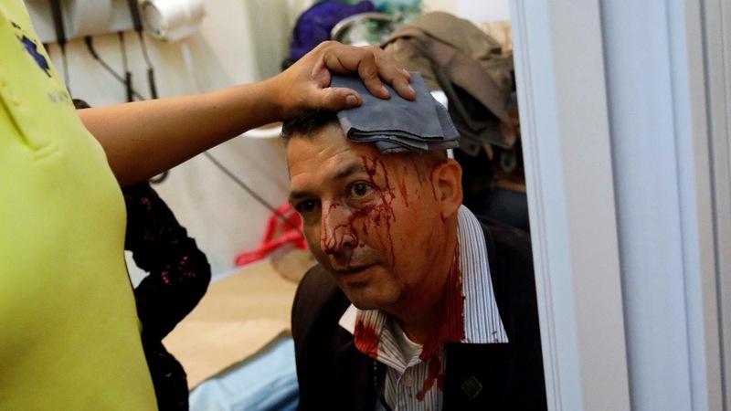 Lawmakers beaten inside Venezuela's parliament