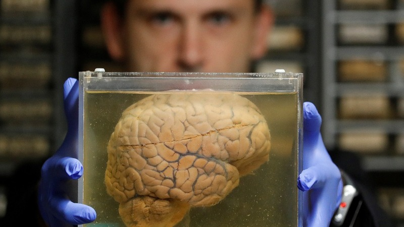 Inside a psychiatric hospital's stash of 3,000 brains