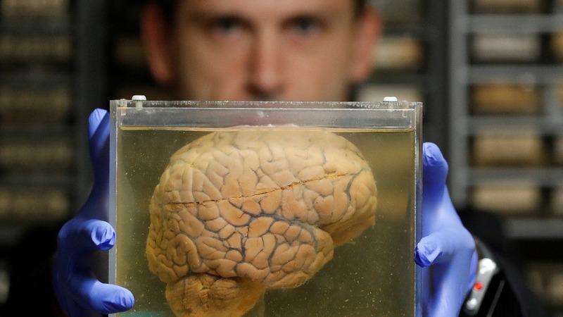 Inside a psychiatric hospital's stash of 3,000 brains
