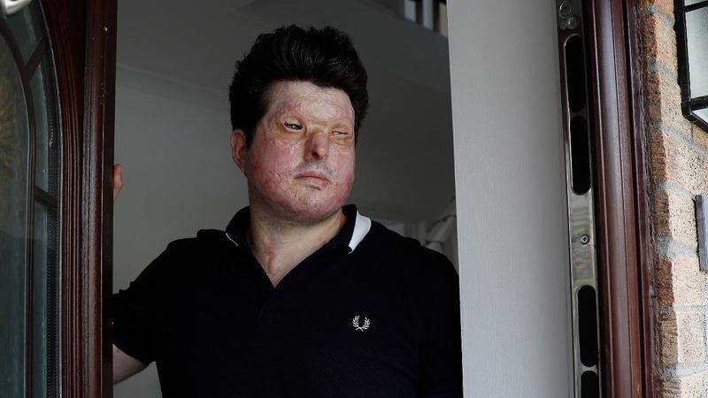 UK acid-attack victim calls for tough sentences