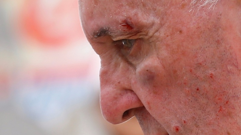 A bloody Pope sticks to his schedule