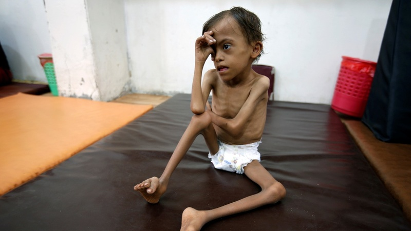 Special report: Saudi's de facto blockade hits Yemen aid