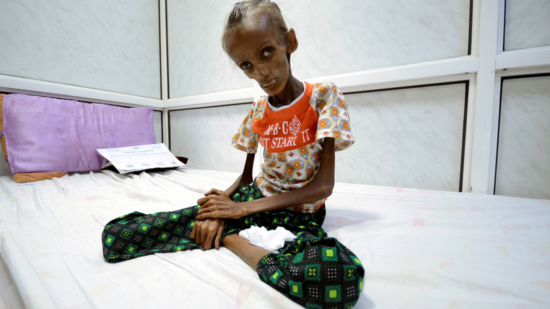 Road to recovery for symbol of Yemen's war