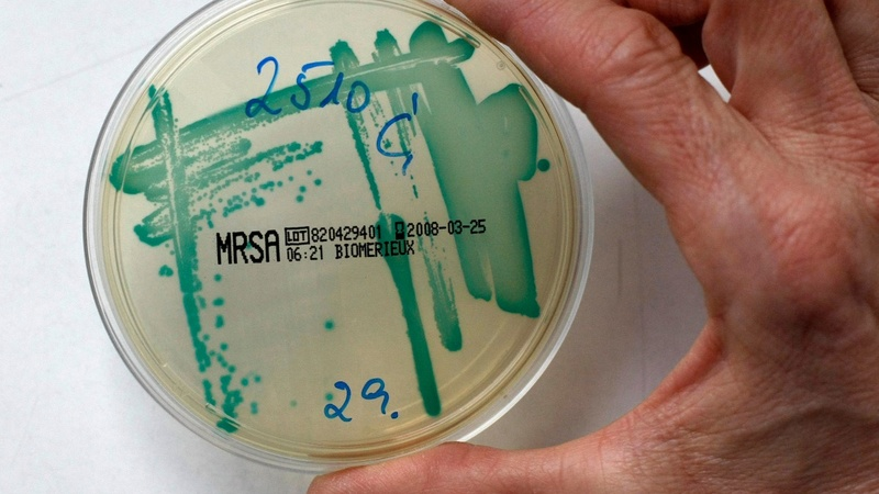 Superbugs: a serial killer of our own making?