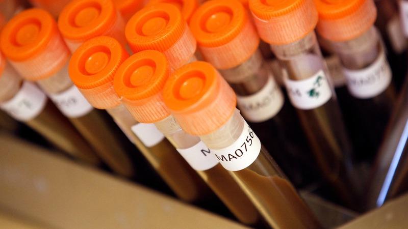 Pharma firms 'need to do more' to counter superbugs