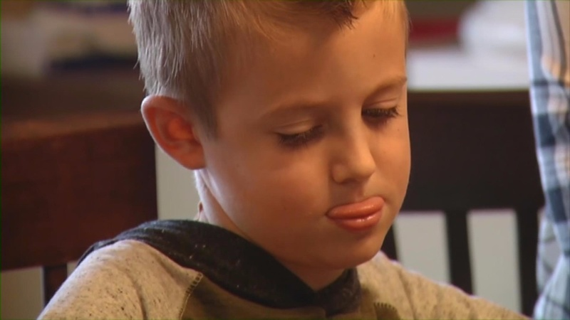 Rare polio-like illness cases spike in Minnesota