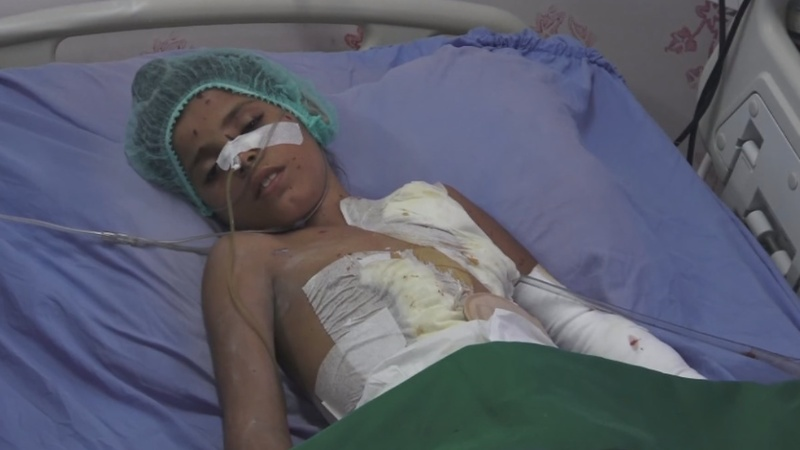 Yemeni father pleads for an end to air strikes