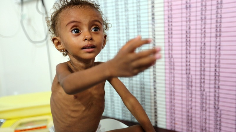 Hunger has killed 'more than 80,000' Yemeni kids