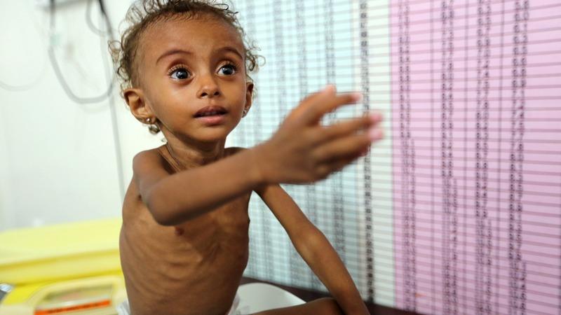 Hunger has killed 'more than 80,000' Yemeni kids