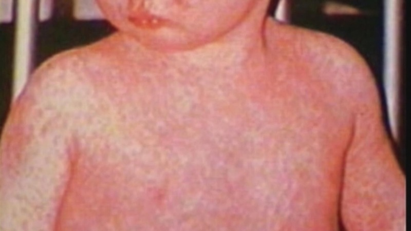 U.S. measles cases hit highest level since 2000