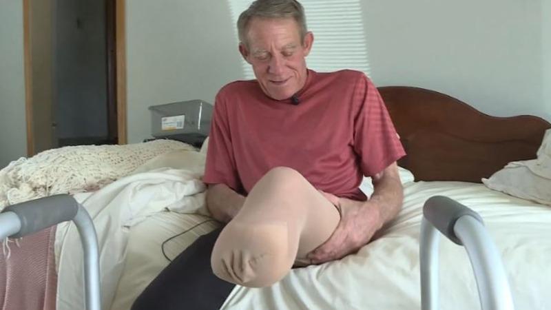 Nebraska farmer cuts off own leg to save life