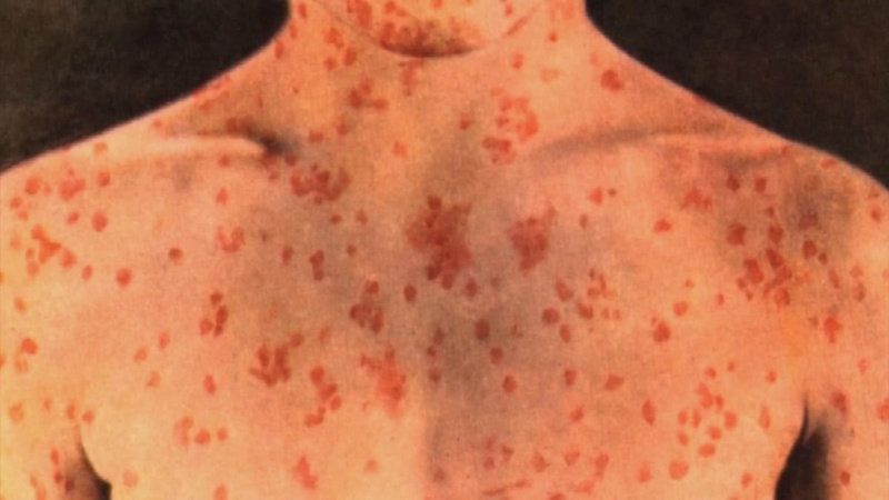 Measles outbreak forces summer camps to tighten rules