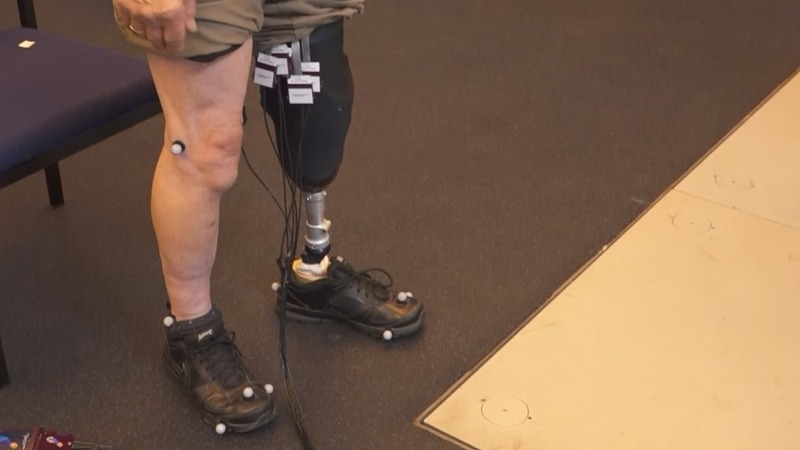 Designing perfect-fit prosthetics for amputees