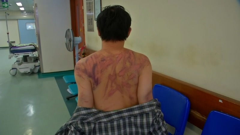 'Beaten to the ground' by Hong Kong gangsters