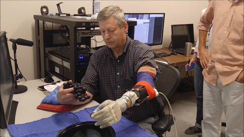 Star Wars-inspired prosthetic lets amputee 'feel'