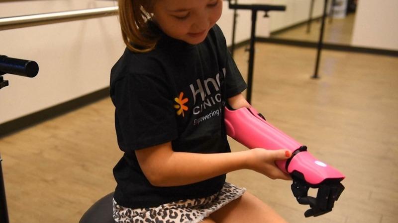 Eight-year-old girl flexes new bionic arm