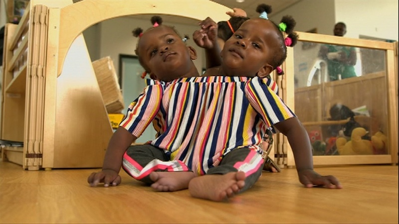 Conjoined twins defy the odds in new home of Wales