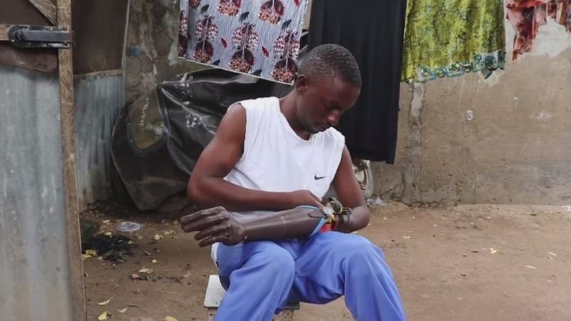 3D prints help Nigeria's conflict-stricken amputees