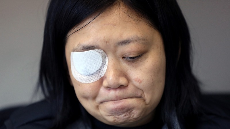 HK journalist seeks justice after losing right eye